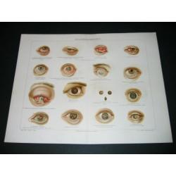 Eyes illness